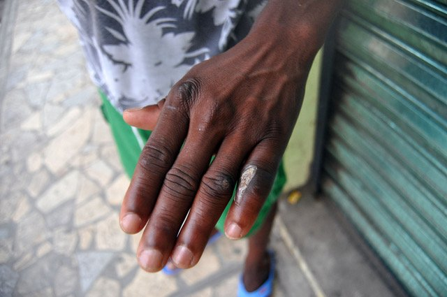Senussi, a migrant from Guinea, shows the wound he received while crossing Central America. (Irene Savio)